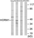 C11285-1 - HORMAD1 / NOHMA