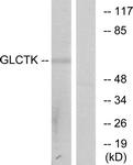 C11307-1 - Glycerate kinase