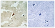 C11312-1 - MAPKAP Kinase-5