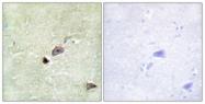 C11314-1 - TRIM59 / TSBF1 / RNF104