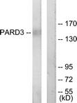 C11397-1 - PARD3 / PAR3