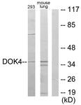 C11398-1 - DOK4