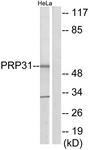 C11412-1 - PRPF31