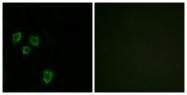 C11416-1 - Mucin-16 / CA125