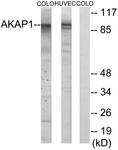 C11427-1 - AKAP1