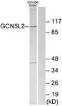C11438-1 - KAT2A / GCN5L2