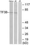 C11452-1 - BRF1 / TFIIIB90