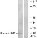 C11456-1 - Histone H2B