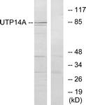 C11624-1 - UTP14A