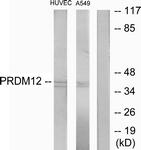 C11694-1 - PRDM12 / PFM9