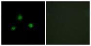 C11739-1 - Ubinuclein-1 (UBN1)