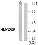 C11798-1 - SMARCE1-related protein