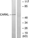 C11846-1 - Sedoheptulokinase