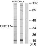 C11858-1 - CNOT7