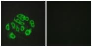 C11879-1 - Endomucin