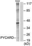 C11888-1 - CARD5 / PYCARD / ASC