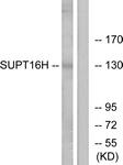 C11966-1 - SUPT16H / FACT140