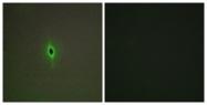 C12015-1 - Serotonin receptor 2C (HTR2C)