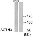 C12026-1 - Alpha-actinin-3 / ACTN3