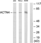 C12027-1 - Alpha-actinin-1 / ACTN1