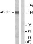 C12035-1 - Adenylate cyclase type 5