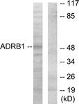 C12043-1 - Beta-1 adrenergic receptor
