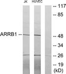 C12056-1 - Arrestin beta-1 / ARRB1