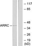 C12058-1 - Arrestin C / ARR3