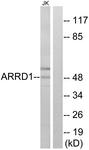 C12059-1 - ARRDC1