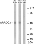 C12061-1 - ARRDC3