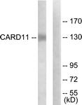 C12113-1 - CARD11 / CARMA1