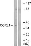C12133-1 - CCR11 / CCRL1