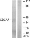 C12176-1 - CDCA7 / JPO1