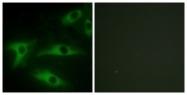 C12195-1 - Collagen type I alpha 2 chain