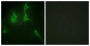 C12212-1 - Collagen type IX alpha 3 chain
