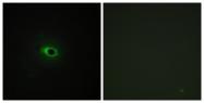 C12216-1 - Collagen type XII alpha 1 chain