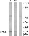 C12219-1 - Cofilin-2