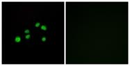 C12226-1 - Collagen type XXIII alpha 1 chain