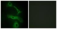 C13035-1 - Apolipoprotein J / Apo J