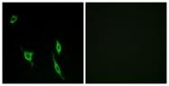 C13040-1 - Netrin receptor DCC