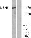 C13091-1 - MSH6