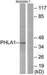 C13101-1 - TDAG51 / PHLDA1