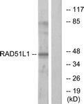 C13106-1 - RAD51L1