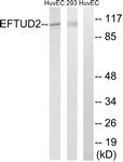 C14001-1 - U5-116 kDa / EFTUD2