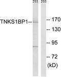 C14002-1 - TNKS1BP1