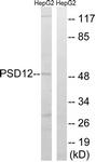 C14021-1 - PSMD12