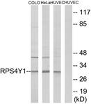 C14122-1 - RPS4Y1 / RPS4Y