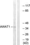 C14257-1 - DGAT2L3 / AWAT1