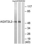 C14373-1 - AGXT2L2