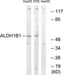 C14388-1 - ALDH5